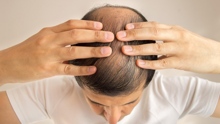 Human Growth Hormone For Hair Loss And Regrowth