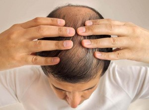 Male androgenetic alopecia