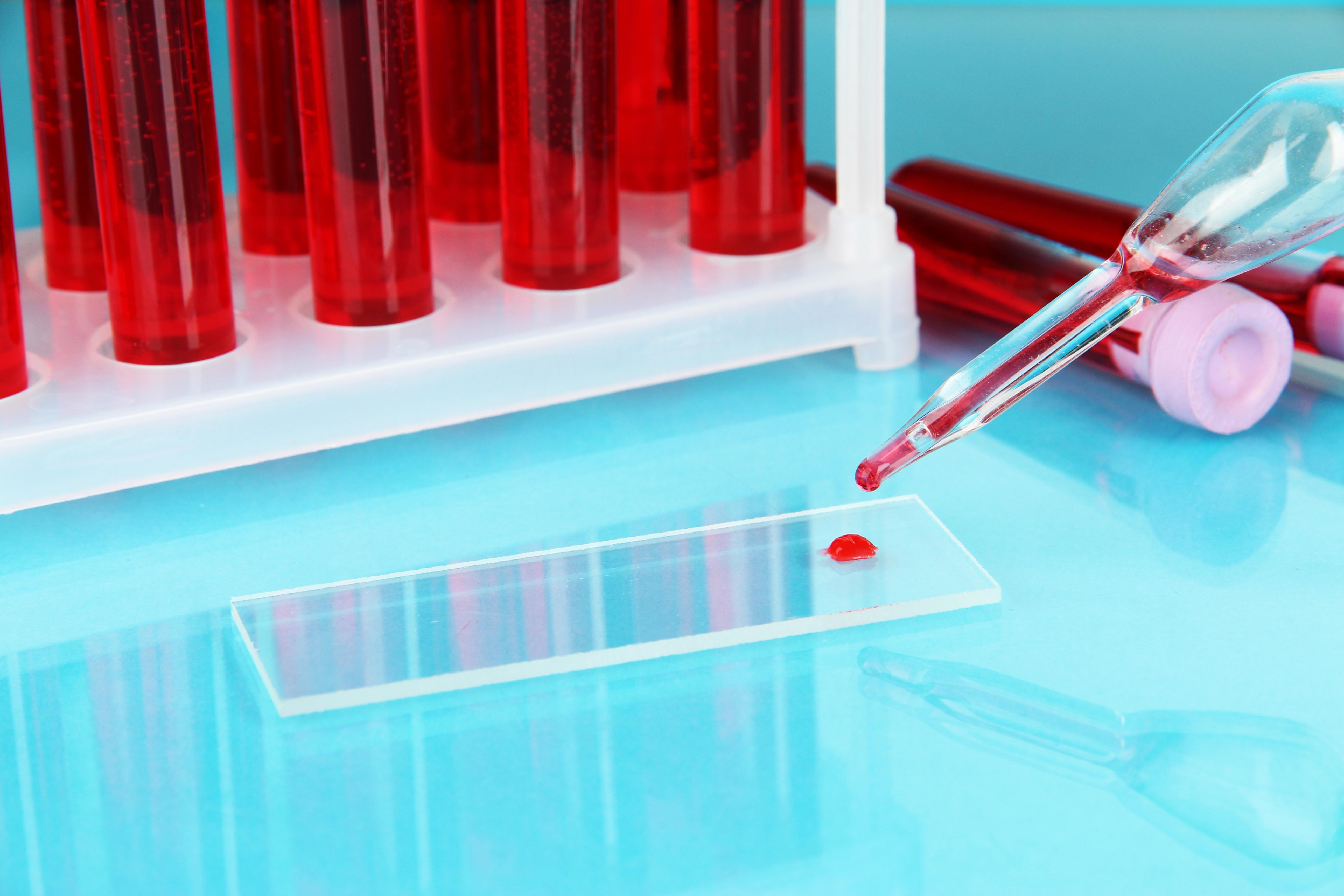hormone tube test