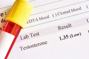 Low T blood tests results